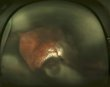 Choroidal Detachment 2.jpg